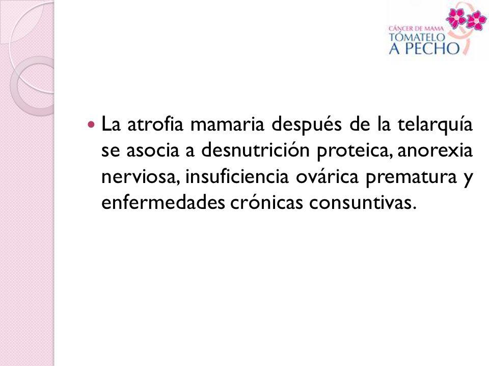 La atrofia mamaria después de la telarquía se asocia a desnutrición proteica, anorexia nerviosa, insuficiencia ovárica prematura y enfermedades crónic