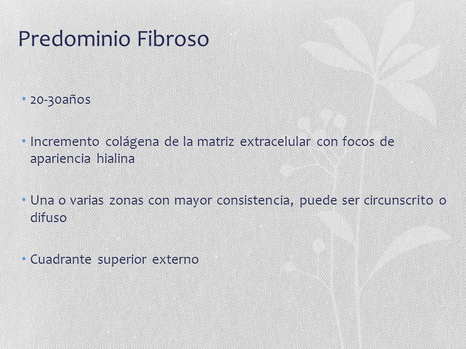 Predominio Fibroso 20-30años Incremento colágena de la matriz extracelular con focos de apariencia hialina Una o varias zonas con mayor consistencia,