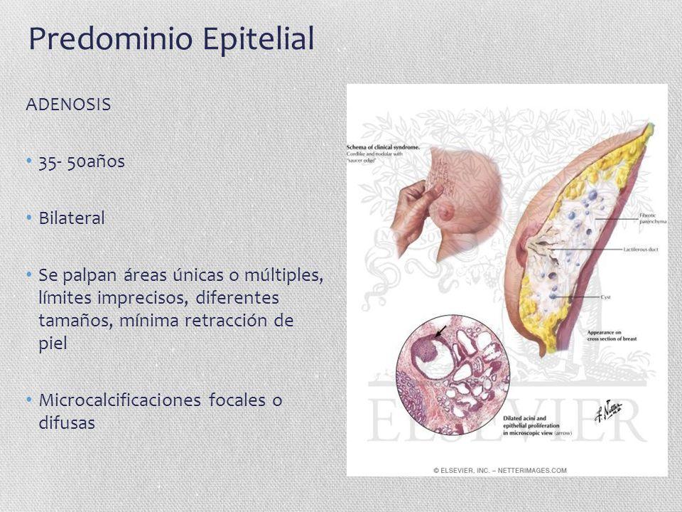 Predominio Epitelial ADENOSIS 35- 50años Bilateral Se palpan áreas únicas o múltiples, límites imprecisos, diferentes tamaños, mínima retracción de pi