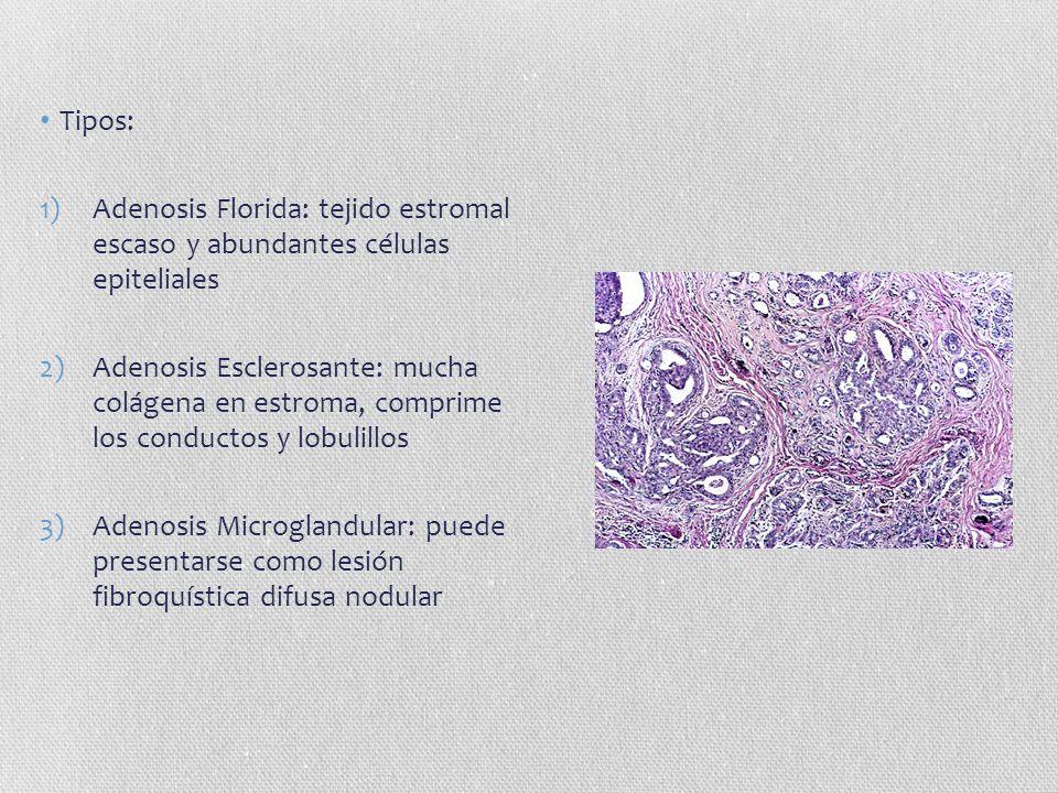 Tipos: 1)Adenosis Florida: tejido estromal escaso y abundantes células epiteliales 2)Adenosis Esclerosante: mucha colágena en estroma, comprime los co