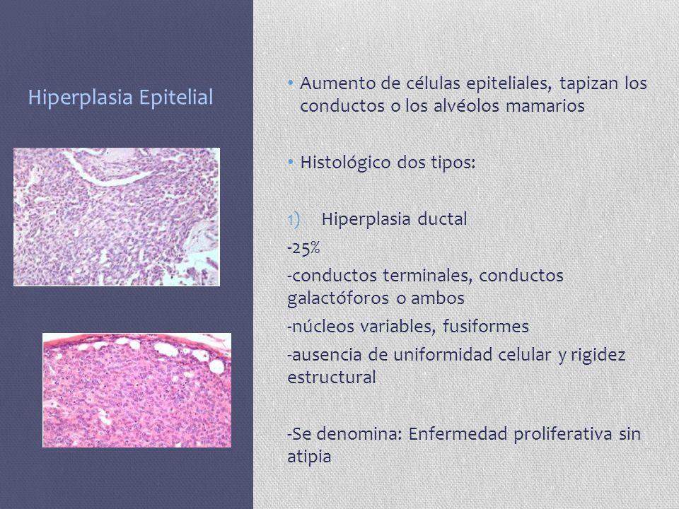 Hiperplasia Epitelial Aumento de células epiteliales, tapizan los conductos o los alvéolos mamarios Histológico dos tipos: 1)Hiperplasia ductal -25% -