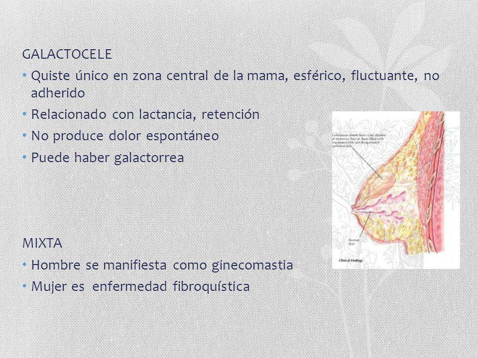 GALACTOCELE Quiste único en zona central de la mama, esférico, fluctuante, no adherido Relacionado con lactancia, retención No produce dolor espontáne