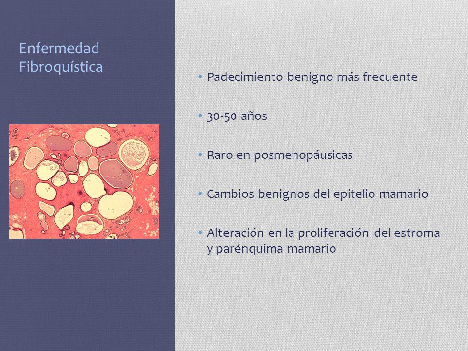 Enfermedad Fibroquística Padecimiento benigno más frecuente 30-50 años Raro en posmenopáusicas Cambios benignos del epitelio mamario Alteración en la