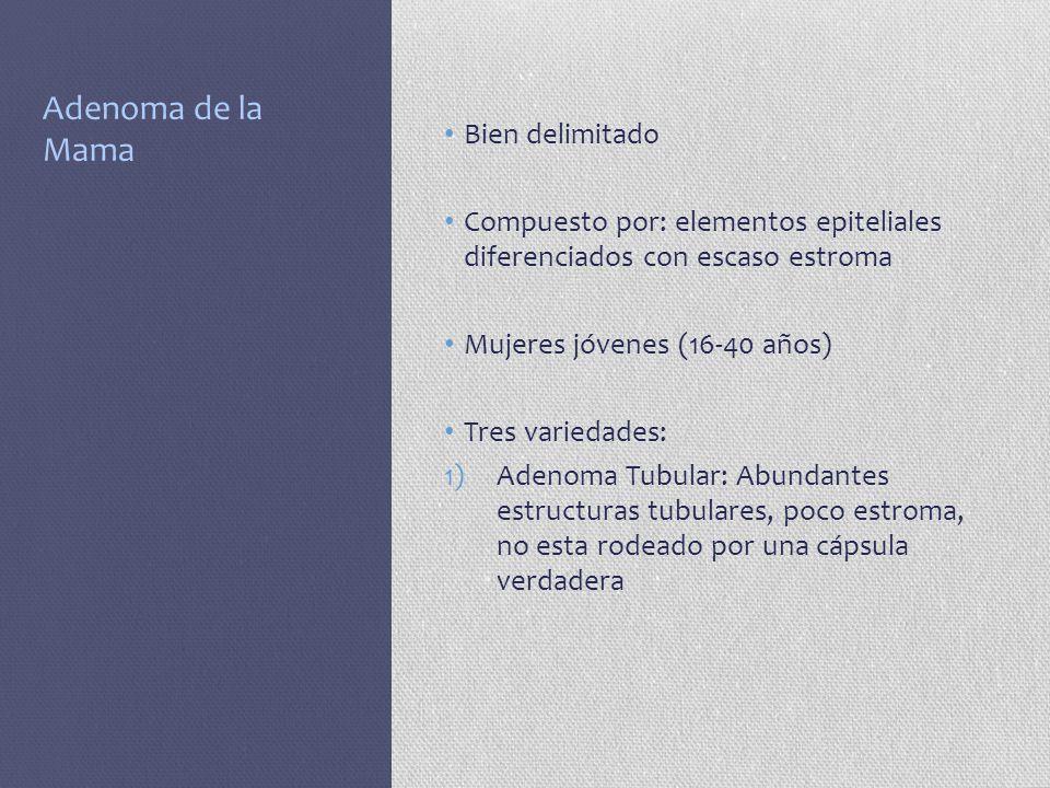 Adenoma de la Mama Bien delimitado Compuesto por: elementos epiteliales diferenciados con escaso estroma Mujeres jóvenes (16-40 años) Tres variedades: