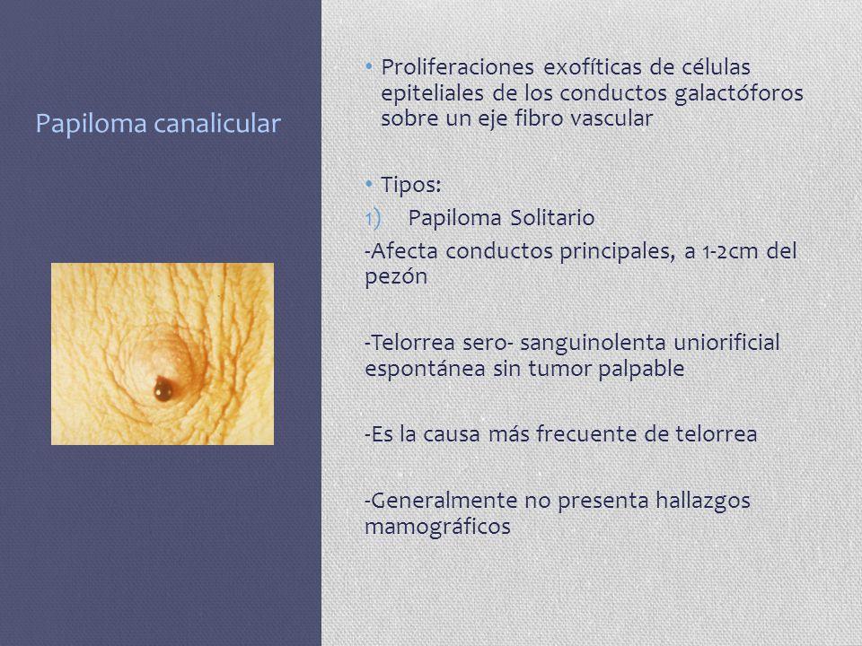 Papiloma canalicular Proliferaciones exofíticas de células epiteliales de los conductos galactóforos sobre un eje fibro vascular Tipos: 1)Papiloma Sol
