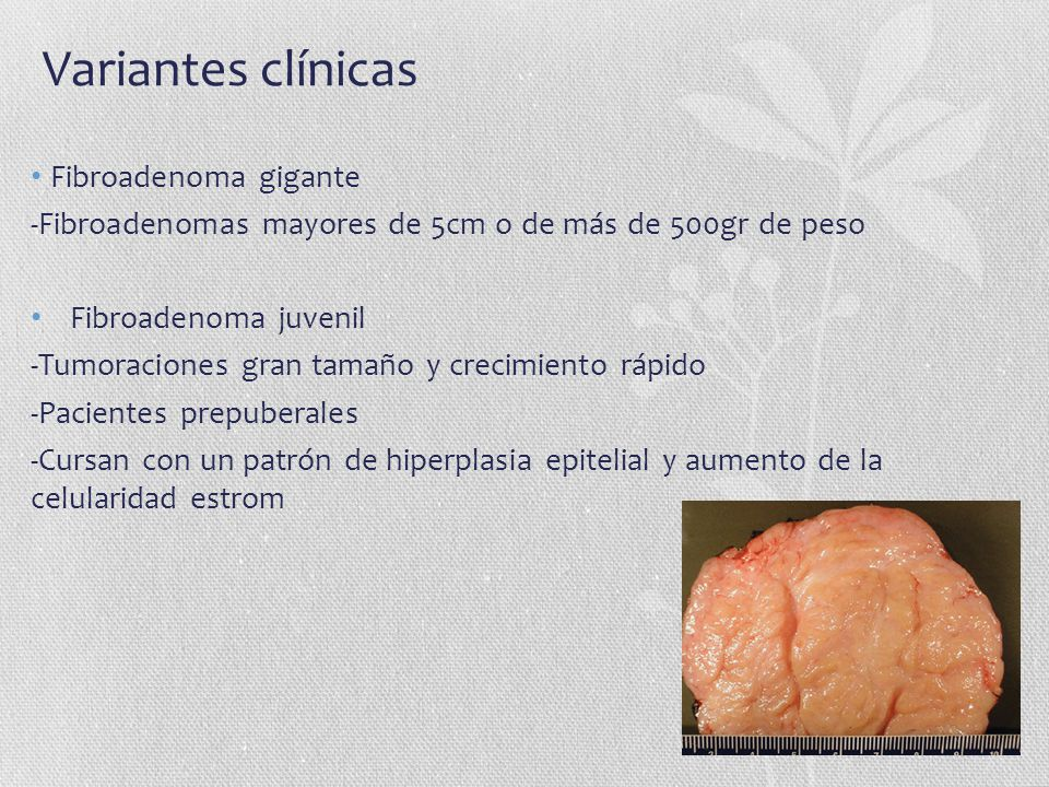 Variantes clínicas Fibroadenoma gigante -Fibroadenomas mayores de 5cm o de más de 500gr de peso Fibroadenoma juvenil -Tumoraciones gran tamaño y creci