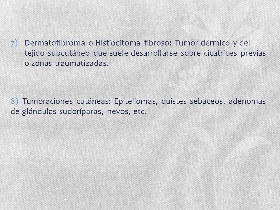 7)Dermatofibroma o Histiocitoma fibroso: Tumor dérmico y del tejido subcutáneo que suele desarrollarse sobre cicatrices previas o zonas traumatizadas.