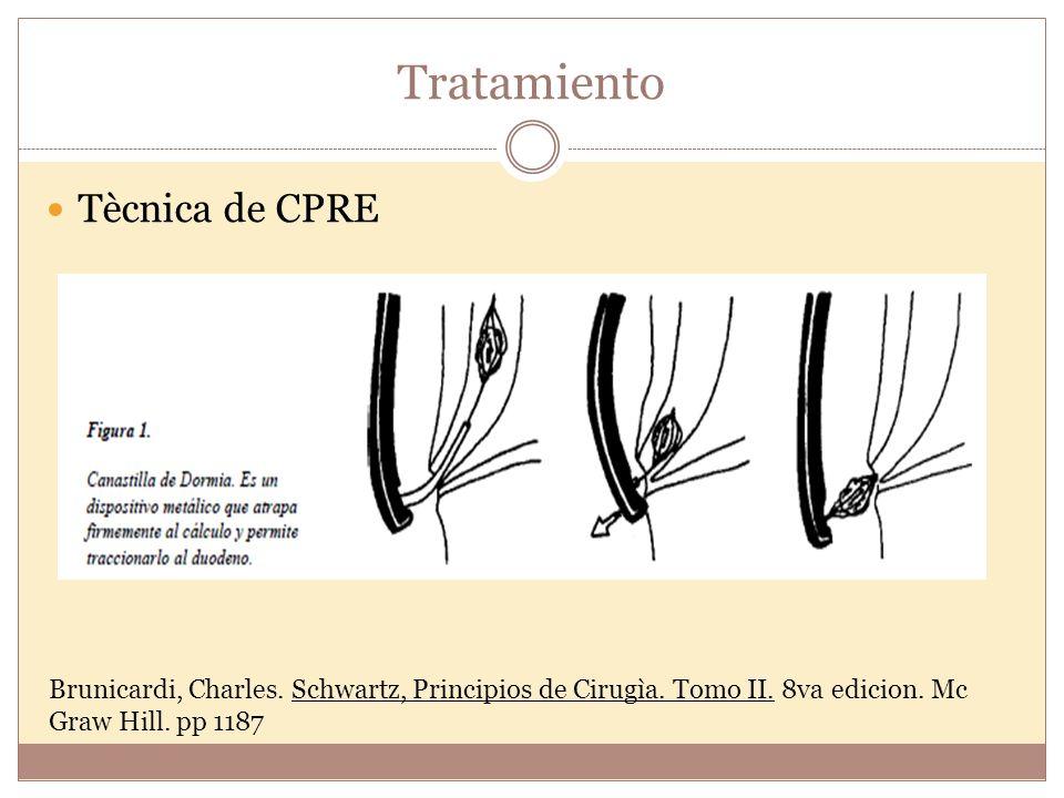 Tratamiento Tècnica de CPRE Brunicardi, Charles. Schwartz, Principios de Cirugìa. Tomo II. 8va edicion. Mc Graw Hill. pp 1187