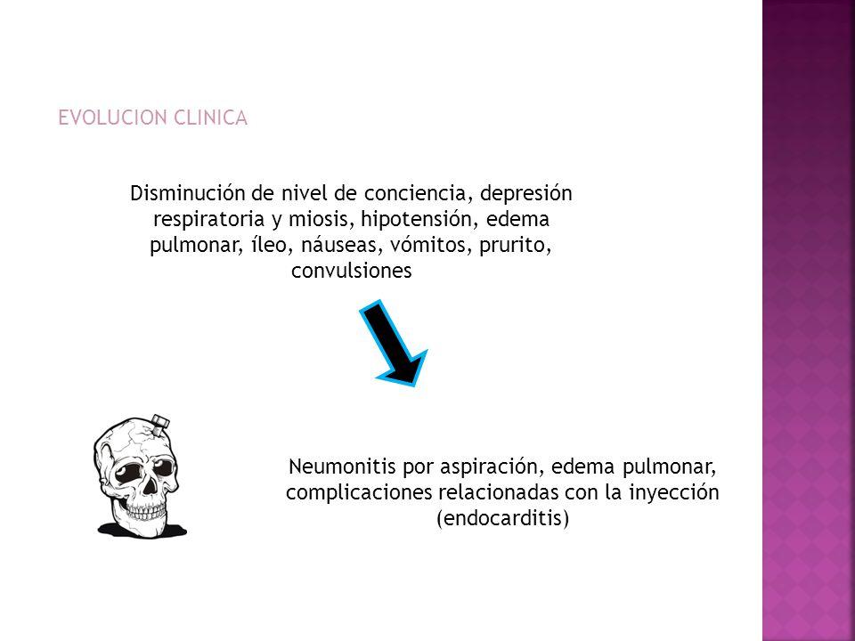 EVOLUCION CLINICA Neumonitis por aspiración, edema pulmonar, complicaciones relacionadas con la inyección (endocarditis) Disminución de nivel de conci