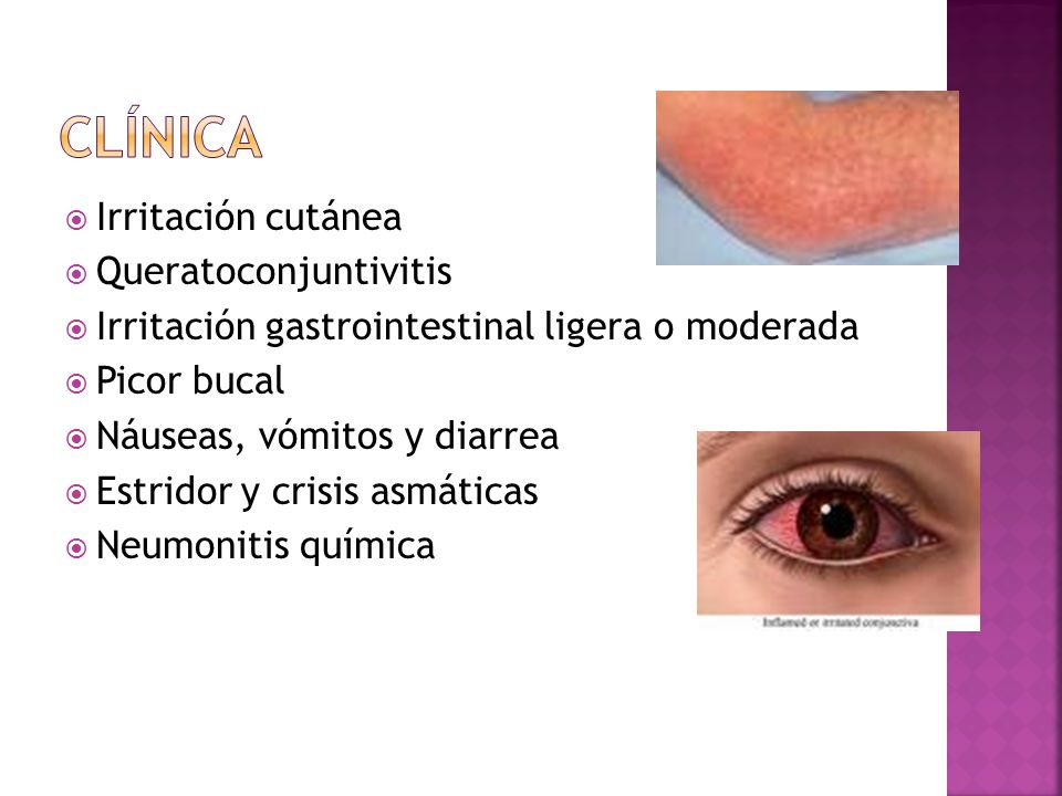 Irritación cutánea Queratoconjuntivitis Irritación gastrointestinal ligera o moderada Picor bucal Náuseas, vómitos y diarrea Estridor y crisis asmátic