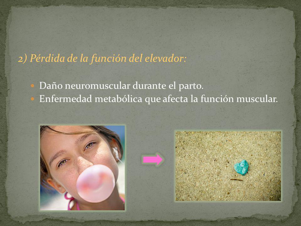 2) Pérdida de la función del elevador: Daño neuromuscular durante el parto. Enfermedad metabólica que afecta la función muscular.