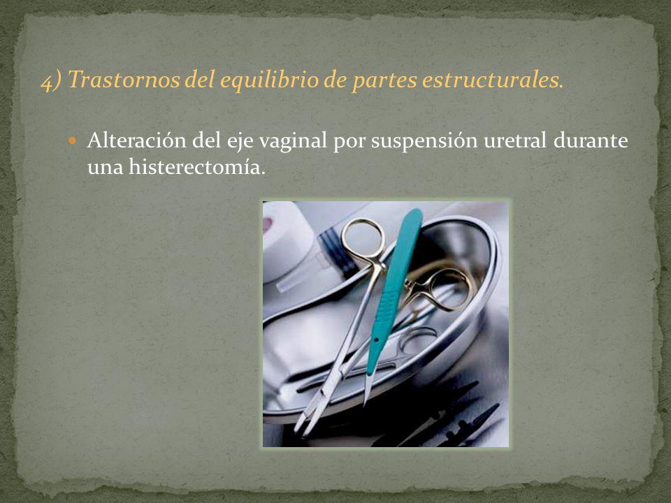 4) Trastornos del equilibrio de partes estructurales. Alteración del eje vaginal por suspensión uretral durante una histerectomía.