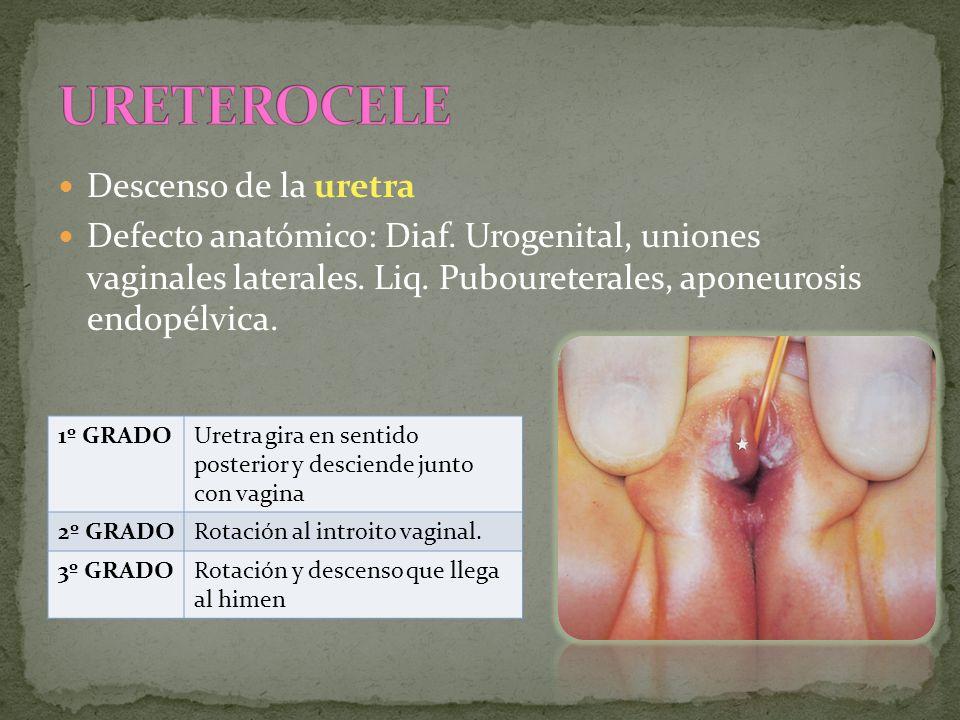 Descenso de la uretra Defecto anatómico: Diaf. Urogenital, uniones vaginales laterales. Liq. Puboureterales, aponeurosis endopélvica. 1º GRADOUretra g