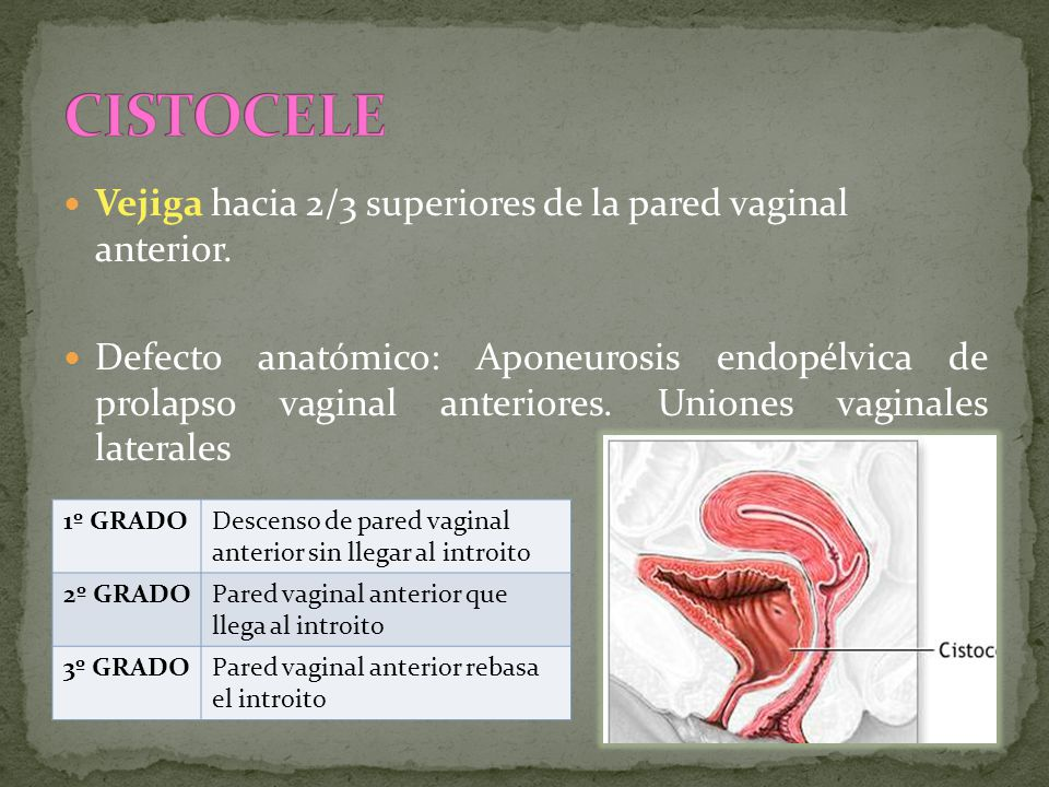 Vejiga hacia 2/3 superiores de la pared vaginal anterior. Defecto anatómico: Aponeurosis endopélvica de prolapso vaginal anteriores. Uniones vaginales