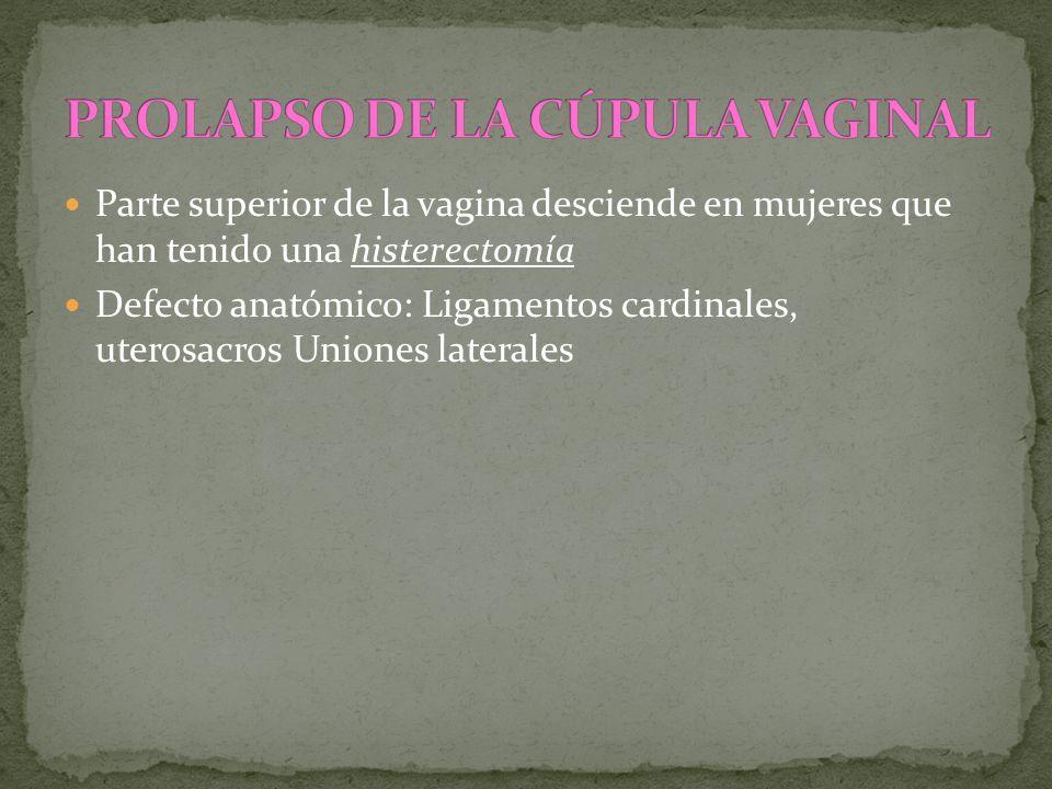 Parte superior de la vagina desciende en mujeres que han tenido una histerectomía Defecto anatómico: Ligamentos cardinales, uterosacros Uniones latera