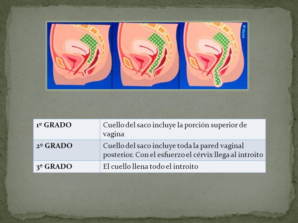 1º GRADOCuello del saco incluye la porción superior de vagina 2º GRADOCuello del saco incluye toda la pared vaginal posterior. Con el esfuerzo el cérv