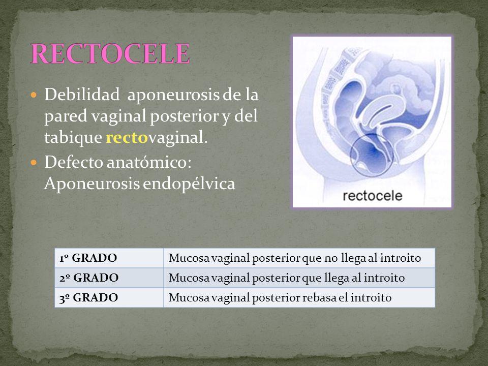 Debilidad aponeurosis de la pared vaginal posterior y del tabique rectovaginal. Defecto anatómico: Aponeurosis endopélvica 1º GRADOMucosa vaginal post
