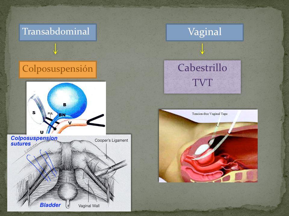 Transabdominal Colposuspensión Vaginal Cabestrillo TVT Cabestrillo TVT.