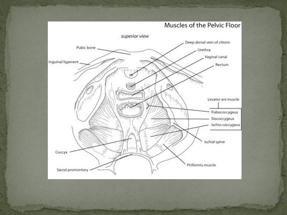 Cambios anatómicos provocados por presiones y laceraciones del parto en el área del introito, horquilla y cuerpo perineal.