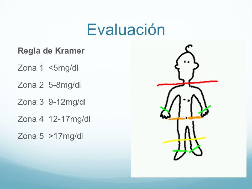 Evaluación Regla de Kramer Zona 1 <5mg/dl Zona 2 5-8mg/dl Zona 3 9-12mg/dl Zona 4 12-17mg/dl Zona 5 >17mg/dl