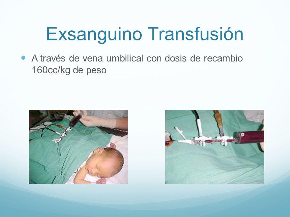 Exsanguino Transfusión A través de vena umbilical con dosis de recambio 160cc/kg de peso