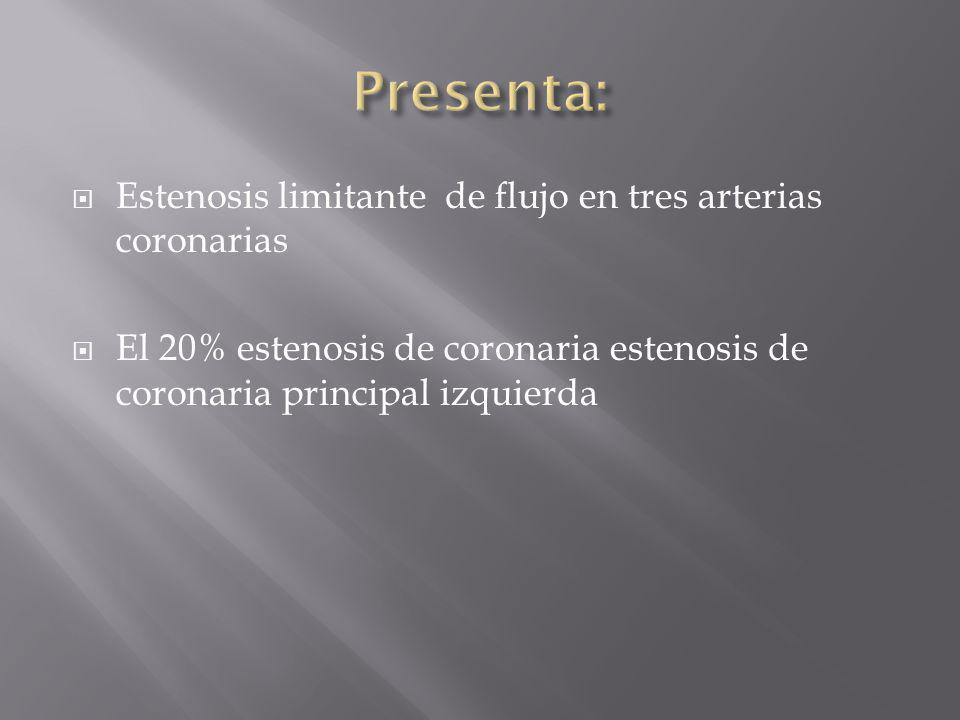 Estenosis limitante de flujo en tres arterias coronarias El 20% estenosis de coronaria estenosis de coronaria principal izquierda