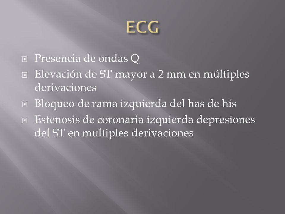 Presencia de ondas Q Elevación de ST mayor a 2 mm en múltiples derivaciones Bloqueo de rama izquierda del has de his Estenosis de coronaria izquierda