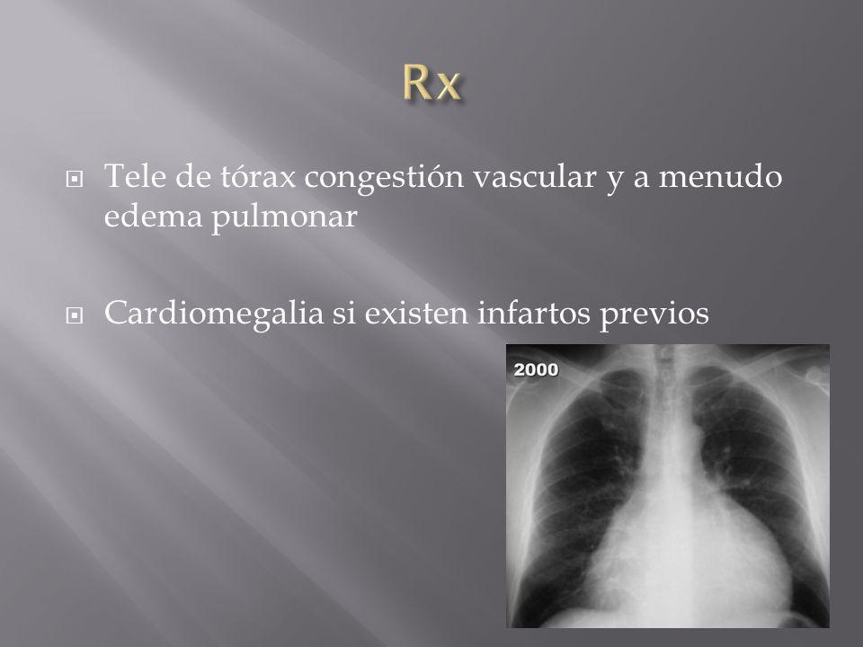 Tele de tórax congestión vascular y a menudo edema pulmonar Cardiomegalia si existen infartos previos