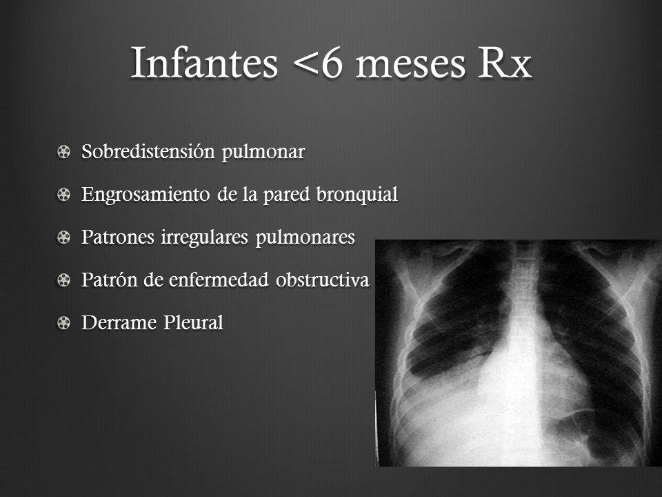 Infantes <6 meses Rx Sobredistensión pulmonar Engrosamiento de la pared bronquial Patrones irregulares pulmonares Patrón de enfermedad obstructiva Der