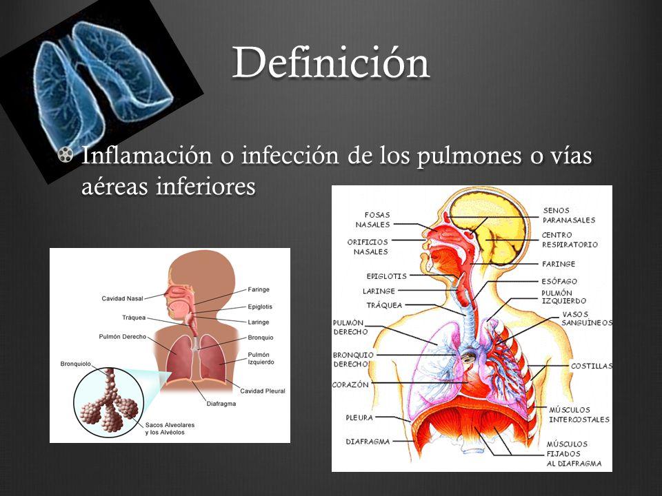 Definición Inflamación o infección de los pulmones o vías aéreas inferiores