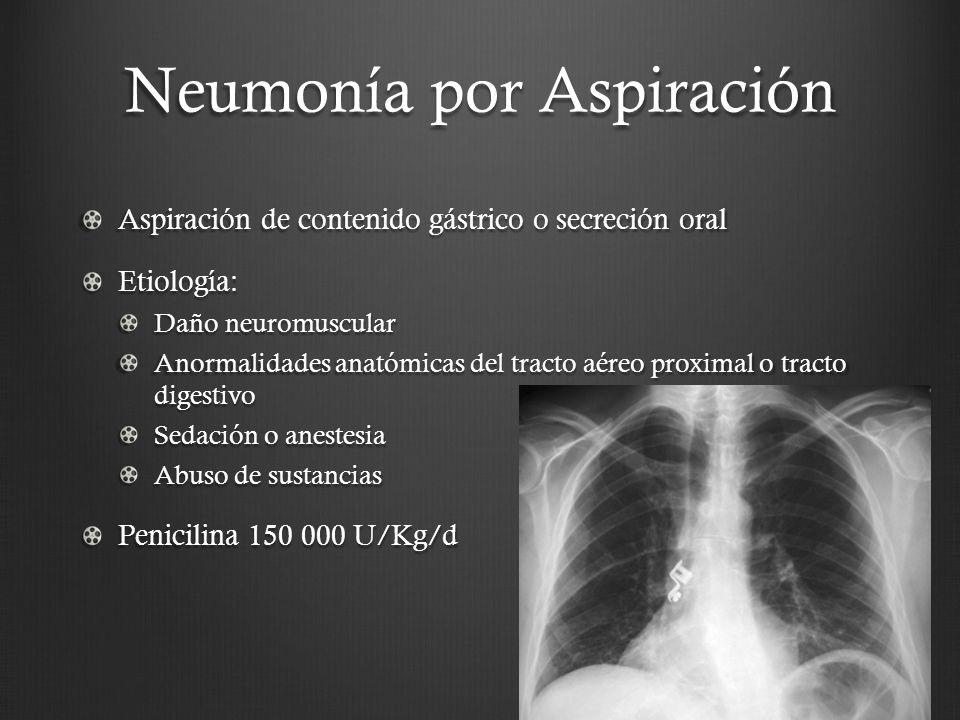 Neumonía por Aspiración Aspiración de contenido gástrico o secreción oral Etiología: Daño neuromuscular Anormalidades anatómicas del tracto aéreo prox