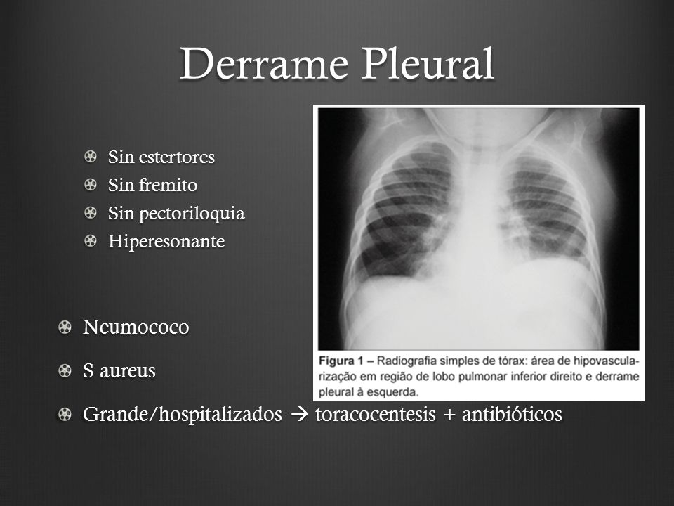 Derrame Pleural Sin estertores Sin fremito Sin pectoriloquia HiperesonanteNeumococo S aureus Grande/hospitalizados toracocentesis + antibióticos