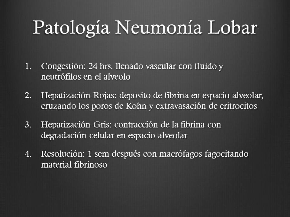 Patología Neumonía Lobar 1.Congestión: 24 hrs. llenado vascular con fluido y neutrófilos en el alveolo 2.Hepatización Rojas: deposito de fibrina en es