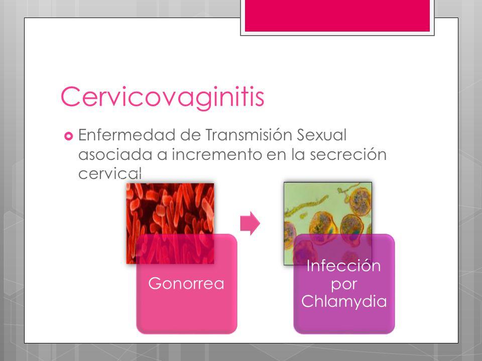 Cervicovaginitis Enfermedad de Transmisión Sexual asociada a incremento en la secreción cervical Gonorrea Infección por Chlamydia