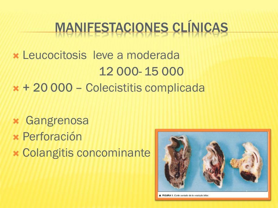 Leucocitosis leve a moderada 12 000- 15 000 + 20 000 – Colecistitis complicada Gangrenosa Perforación Colangitis concominante