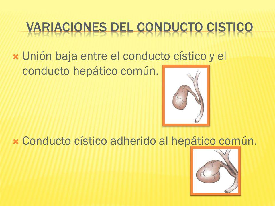 Unión baja entre el conducto cístico y el conducto hepático común. Conducto cístico adherido al hepático común.