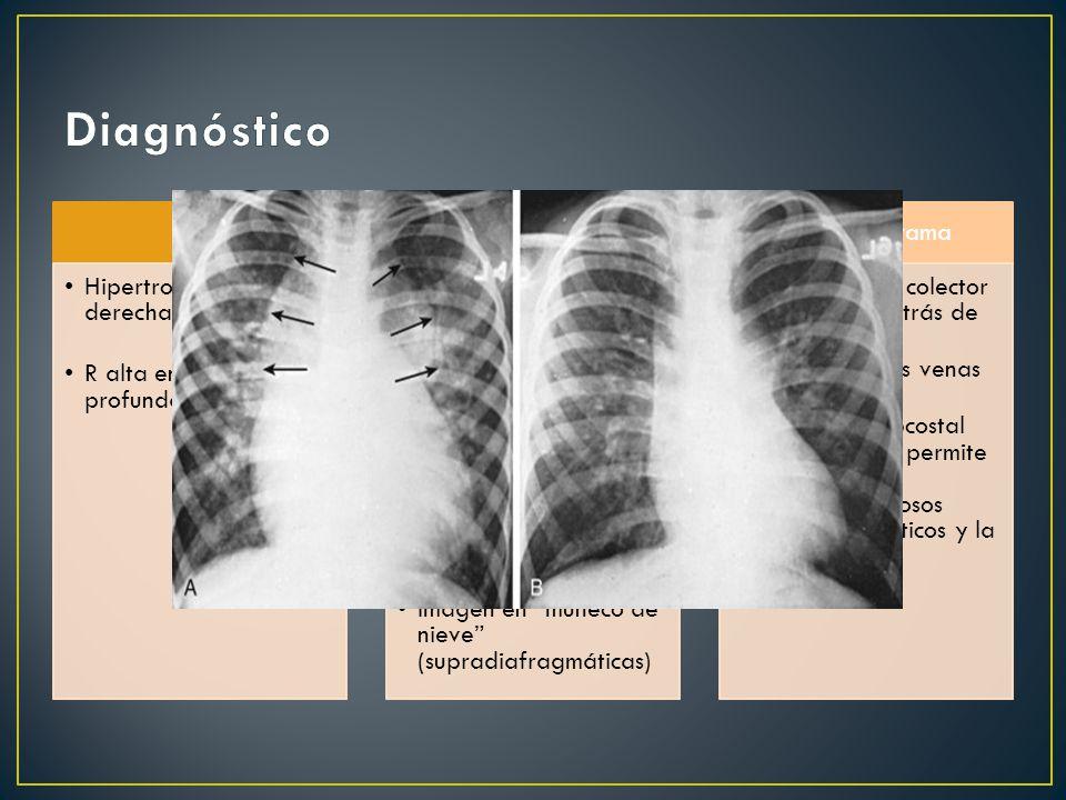 ECG Hipertrofia ventricular derecha R alta en V1 y S profunda en V6 RxTx Cardiomegalia Abombamiento del cono de la arteria pulmonar Hilios pulmonares prominentes Aorta pequeña.