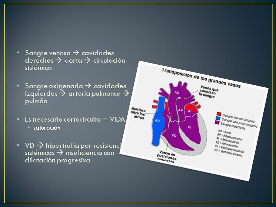 Sangre venosa cavidades derechas aorta circulación sistémica Sangre oxigenada cavidades izquierdas arteria pulmonar pulmón Es necesario cortocircuito = VIDA saturación VD hipertrofia por resistencia sistémicas insuficiencia con dilatación progresiva