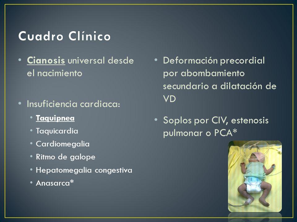Cianosis universal desde el nacimiento Insuficiencia cardiaca: Taquipnea Taquicardia Cardiomegalia Ritmo de galope Hepatomegalia congestiva Anasarca* Deformación precordial por abombamiento secundario a dilatación de VD Soplos por CIV, estenosis pulmonar o PCA*