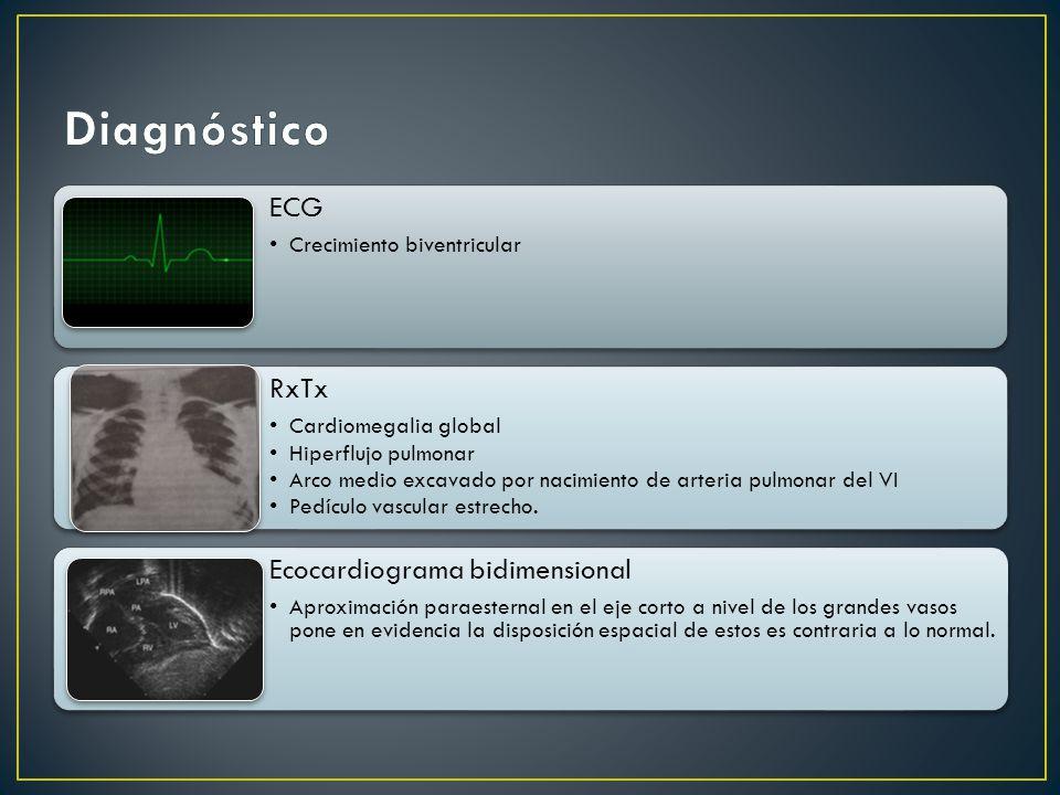 ECG Crecimiento biventricular RxTx Cardiomegalia global Hiperflujo pulmonar Arco medio excavado por nacimiento de arteria pulmonar del VI Pedículo vascular estrecho.