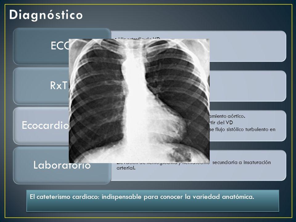Hipertrofia de VD Sobrecarga sistólica.