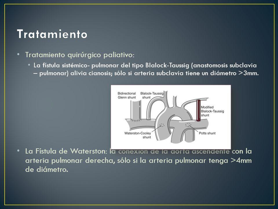 Tratamiento quirúrgico paliativo: La fístula sistémico- pulmonar del tipo Blalock-Taussig (anastomosis subclavia – pulmonar) alivia cianosis; sólo si arteria subclavia tiene un diámetro >3mm.