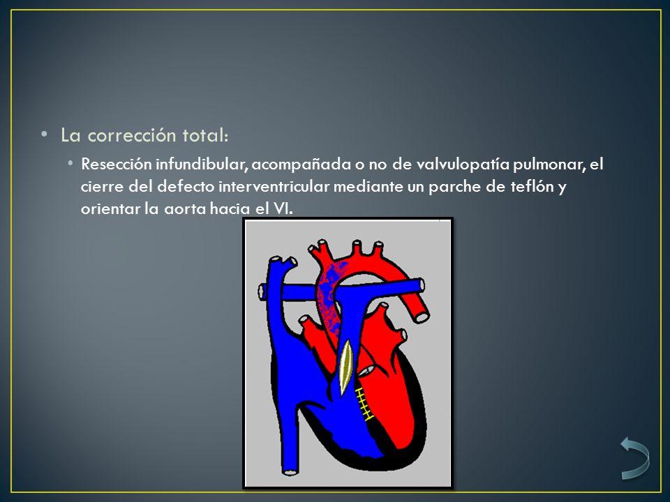 La corrección total: Resección infundibular, acompañada o no de valvulopatía pulmonar, el cierre del defecto interventricular mediante un parche de teflón y orientar la aorta hacia el VI.