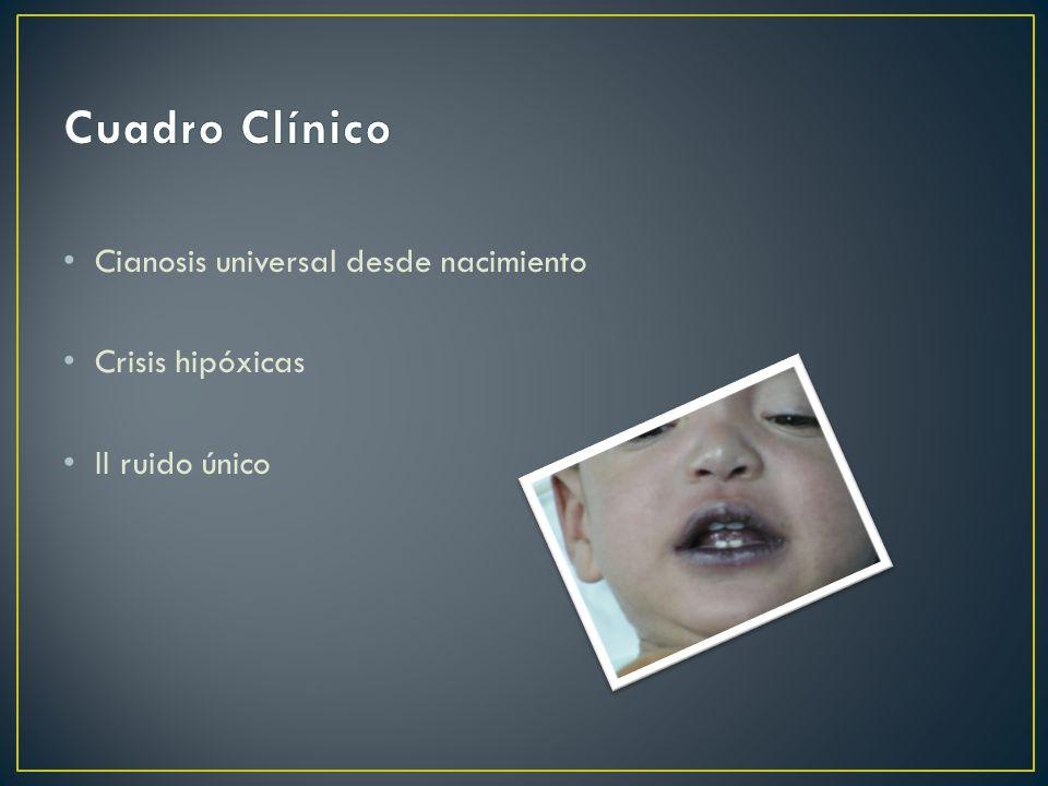 Cianosis universal desde nacimiento Crisis hipóxicas II ruido único