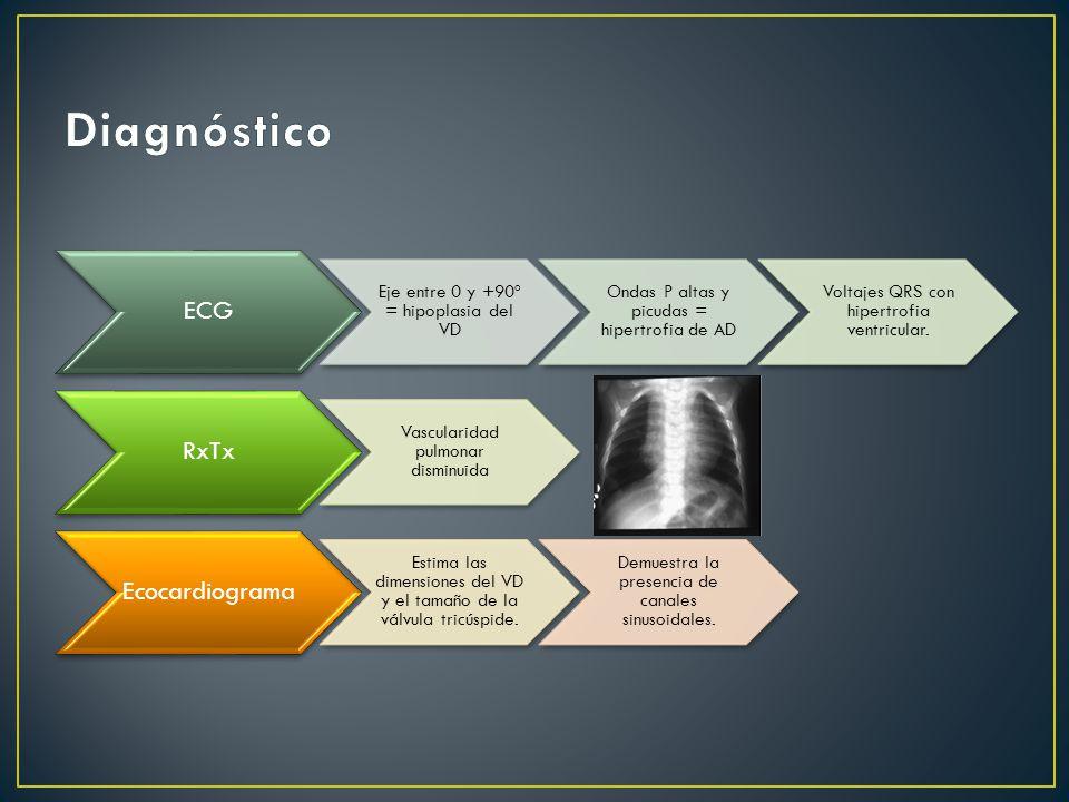 ECG Eje entre 0 y +90º = hipoplasia del VD Ondas P altas y picudas = hipertrofia de AD Voltajes QRS con hipertrofia ventricular.