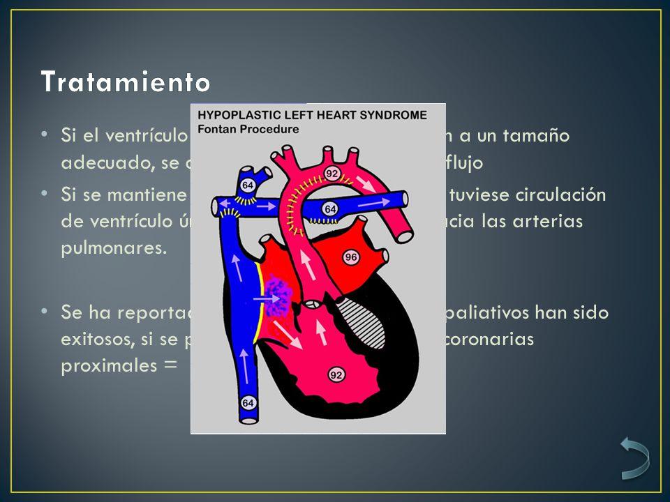 Si el ventrículo y la válvula tricúspide crecen a un tamaño adecuado, se cierran todos los cambios de flujo Si se mantiene hipoplásico, se trata como si tuviese circulación de ventrículo único con un bypass del VD hacia las arterias pulmonares.