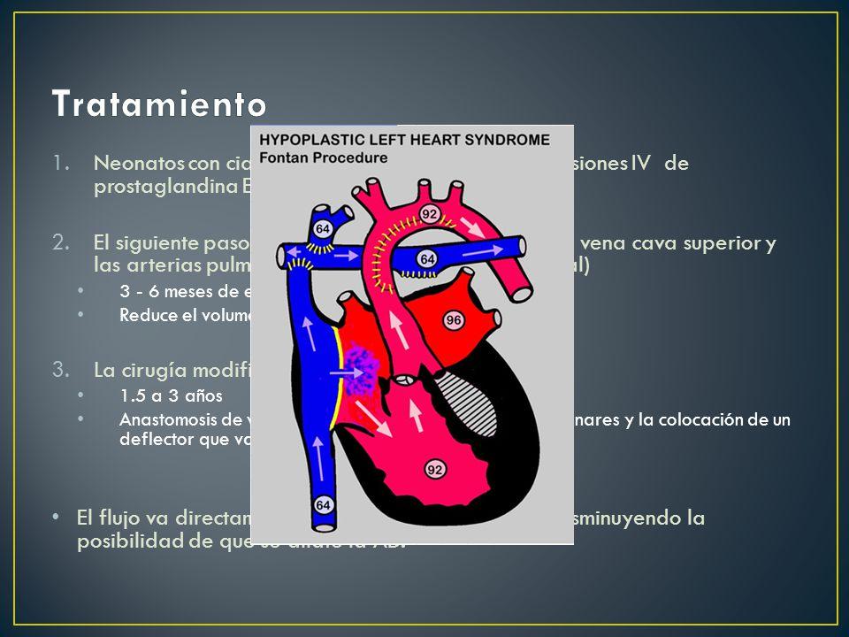 1.Neonatos con cianosis severa se mantienen con infusiones IV de prostaglandina E1 hasta cirugía.