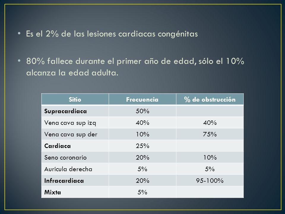 Es el 2% de las lesiones cardiacas congénitas 80% fallece durante el primer año de edad, sólo el 10% alcanza la edad adulta.