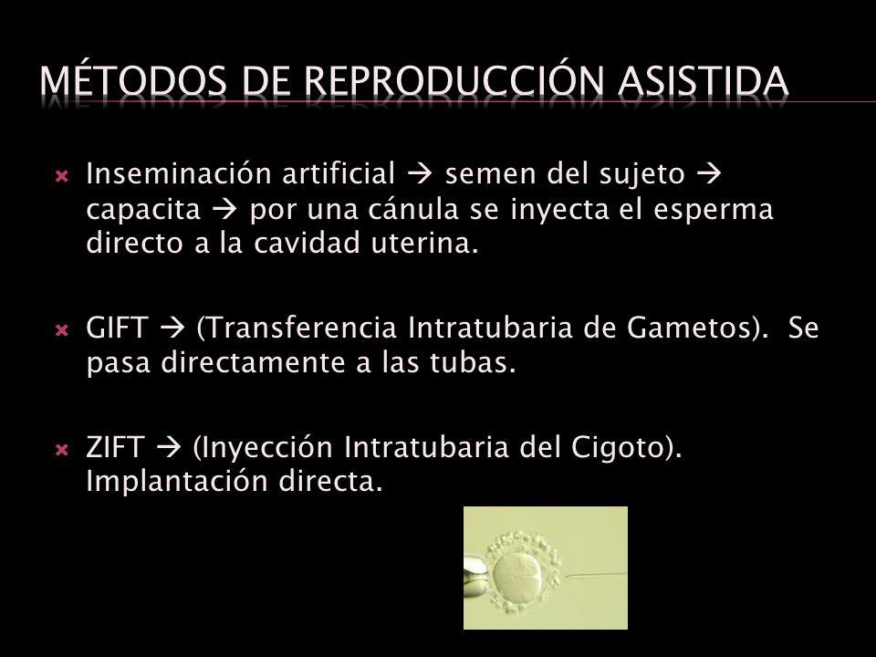 Inseminación artificial semen del sujeto capacita por una cánula se inyecta el esperma directo a la cavidad uterina. GIFT (Transferencia Intratubaria