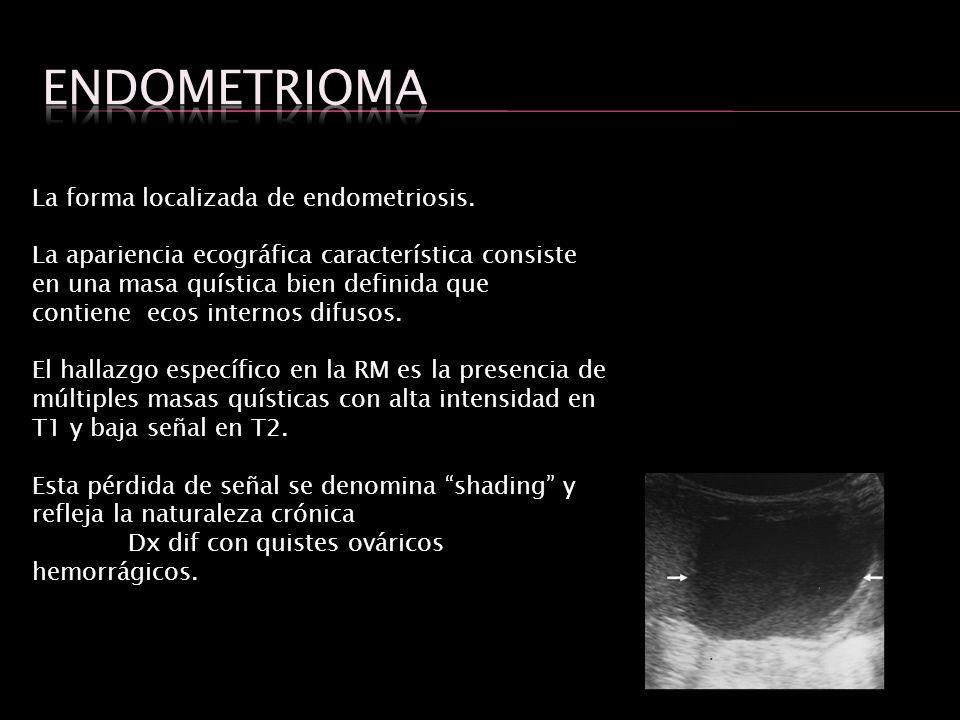 La forma localizada de endometriosis. La apariencia ecográfica característica consiste en una masa quística bien definida que contiene ecos internos d